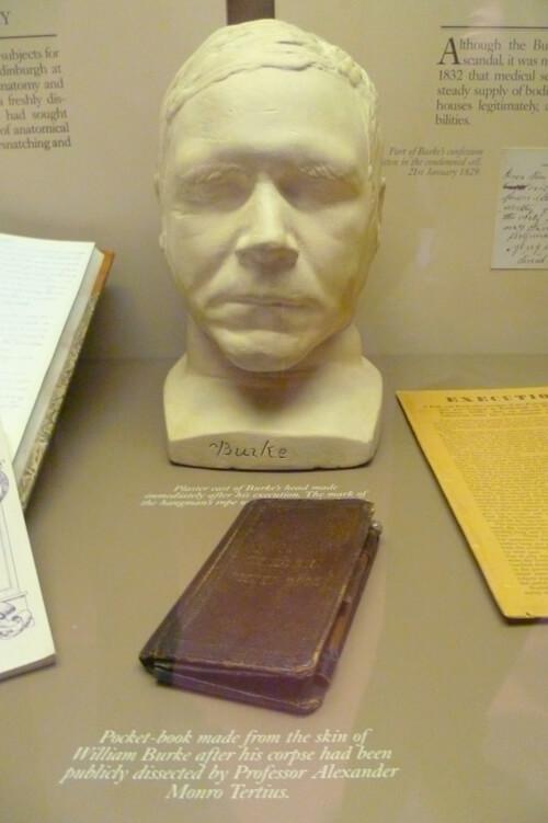 Le masque mortuaire de William Burke